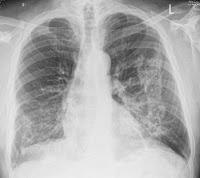 La imagen tiene un atributo ALT vacío; su nombre de archivo es 9b9e1-c8dc7-pulmon.jpg